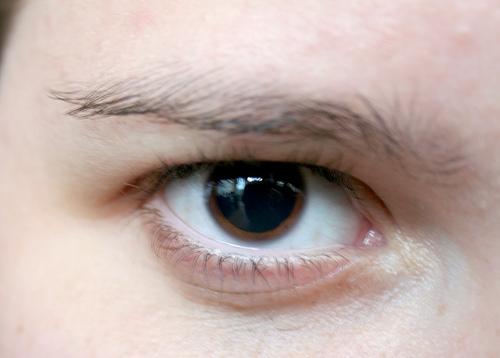 Incômodo Ocular