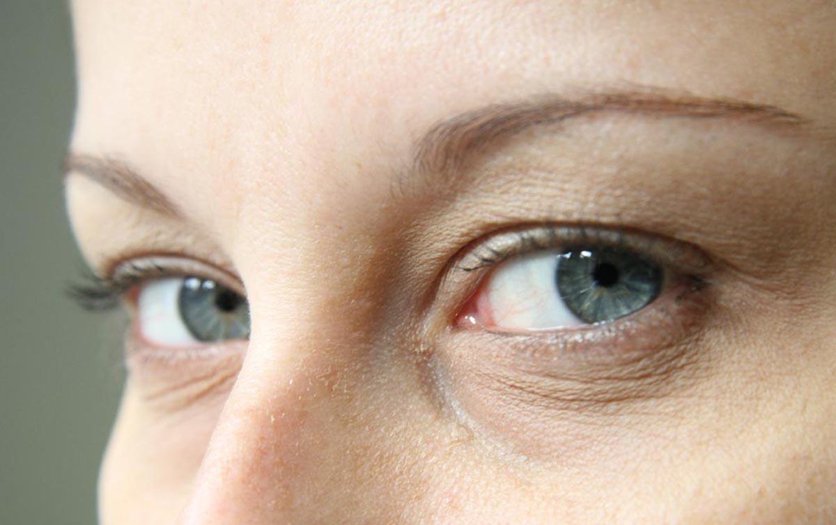 10 Coisas que você precisa saber sobre sua visão!!