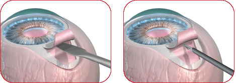 Ex Press - Glaucoma