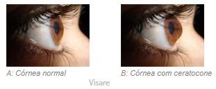 Tratamento Ocular: Anel de Ferrara