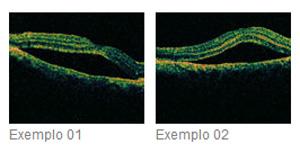 Tratamento Cirúrgico: Deslocamento de Retina