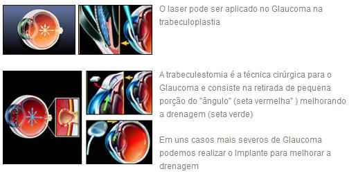 Tratamento Cirúrgico: Glaucoma