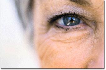 Avastin pode causar cegueira