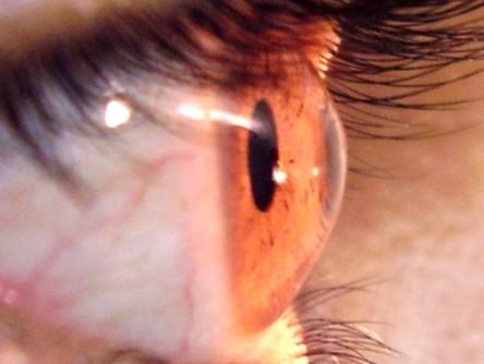 Tratamento ocular: Cross-linking
