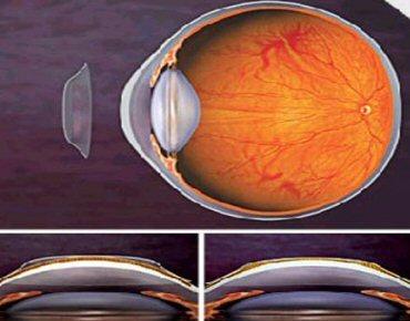 Novas lentes para usar no sono corrigem miopia sem necessidade de cirurgia