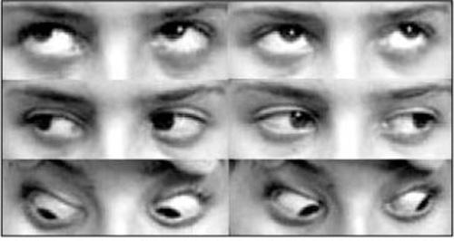Saúde Ocular: Exame da Motilidade Ocular
